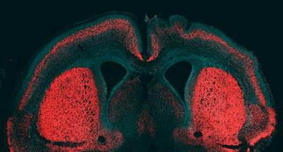 Giza garuna handitzea eragiten duen gene bat eta gene erregulatzaile bat identifikatu dituzte